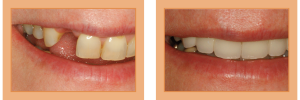 Sally Before & After - Single Implant and Six Porcelain Restorations