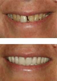 Full Arch by Dr.Berzin Implants Toronto