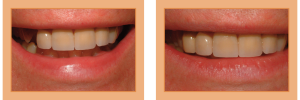 Jim Before & After - Single Implant with Porcelain Crown