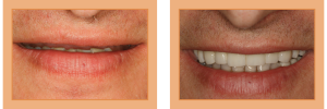 Mike Before - No Upper Teeth. After - Full-Mouth Implant Rehabilitation
