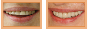 Susan Before & After - Full-Mouth Rehabilitation